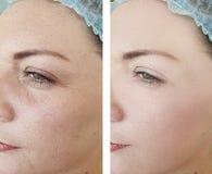 Vrouwenrimpels voordien na effect behandelingen van de de kosmetiekcorrectie van de regeneratie de rijpe verjonging stock afbeelding