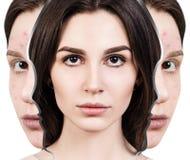 Vrouwenwedergeboorte van slechte te perfectioneren acnehuid royalty-vrije stock foto