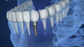 Vue de rayon X de dentier avec l'implant Vue de rayon X Médicalement précis banque de vidéos
