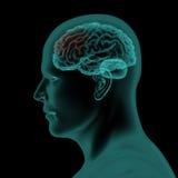 Vue latérale de balayage de rayon X de tête humaine et de cerveau Photographie stock libre de droits