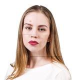 Vues avec la peau de problème sur le visage de femme Photographie stock