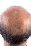 Włosianej straty łysy mężczyzna zdjęcia royalty free
