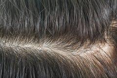 Włosiany dandruff Dandruff, skalp i zdjęcia stock
