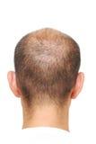 włosy cienki Zdjęcie Stock