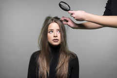 Włosy i głowy skóry problem Zdjęcia Stock