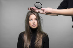 Włosy i głowy skóry problem Obraz Stock