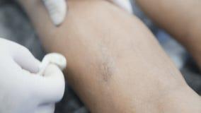 W górę ręk naczyniasty chirurg w rękawiczkach dezynfekuje nogę pacjent z żylakowatymi żyłami przed traktowanie procedurą zdjęcie wideo