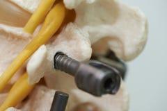 W górę widoku dolędźwiowego kręgosłupa instrumentu i modela fiksacja obrazy royalty free