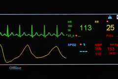 W ICU jednostce Ekg monitor Obrazy Stock