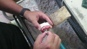 W stomatologicznej laboranckiej stomatologicznego wszczepu budowie zdjęcie wideo