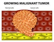 Wachsender bösartiger Tumor Lizenzfreie Stockbilder
