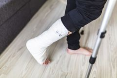 Walking on crutches with a leg in a cast. The man is trying to walk with a broken leg at home stock photo