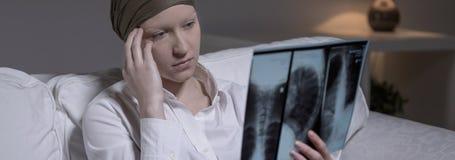 Wanhopende vrouw met hersenenkanker royalty-vrije stock fotografie