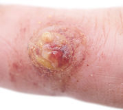 Wart. Close up shot of wart on finger Royalty Free Stock Images
