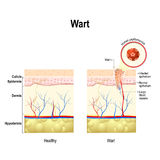 Wart. Human papillomavirus infection Stock Images