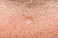 Wart on human skin Royalty Free Stock Photo