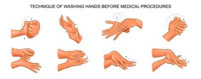 Washing hands before medical procedures. Vector illustration of washing hands before medical procedures vector illustration