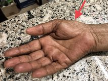 Wasting or Atrophy of Thenar Eminence Palm Muscles of in Asian, Burmese Female Elderly Patient. Caused by Carpal Tunnel Syndrome stock photo