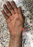 Wasting or Atrophy of Thenar Eminence Palm Muscles of Right Hand in Asian, Burmese Female Elderly Patient. Caused by Carpal Tunnel. Syndrome or Nerve entrapment royalty free stock photos