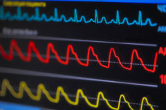 Waves ECG on monitor in perspective Royalty Free Stock Photos