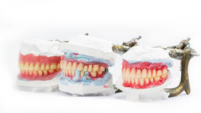 Wax denture,dental models showing different types Stock Photography