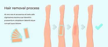 Wax hair removal. The concept of a banner with the stages of wax hair removal. Contour female legs in paper art style, flat vector illustration. Cosmetology and Royalty Free Illustration