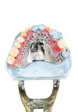 Wax partial denture,dental models showing Royalty Free Stock Photography