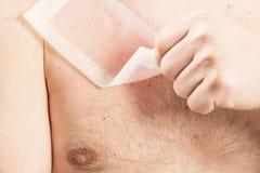 Waxing man torso depilation. Waxing man torso cosmetic depilation epilate hair France Royalty Free Stock Image