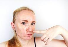 Wazeliniarska i problemowa skóra Portret blondynki dziewczyna z trądzikiem, wazeliniarską skórą i pigmentacją, zdjęcia stock