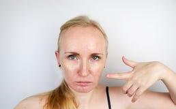 Wazeliniarska i problemowa skóra Portret blondynki dziewczyna z trądzikiem, wazeliniarską skórą i pigmentacją, zdjęcie stock