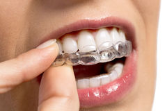 Wearing orthodontic silicone trainer Royalty Free Stock Photo