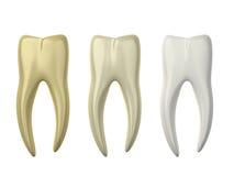 Weiß werdene Zähne Stockbilder