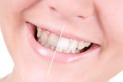 Weiß werdene Zähne. Zahnpflege Lizenzfreies Stockbild