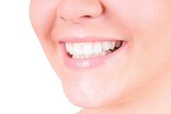 Weiß werdene Zähne. Zahnpflege Lizenzfreies Stockfoto