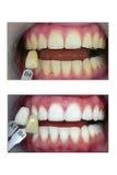 Weiß werdener Zahn, vorher und nachher stockbilder