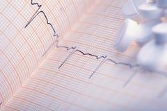 Weiße Pillen auf dem ECG-Papier Stockbilder