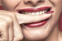 Weiße teeths, die einen Finger beißen Lizenzfreie Stockbilder
