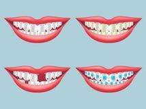 Weißer, schmutziger, verfallener, gebrochener und Orthodontiezahn Stockfoto