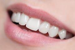 Weißes, glänzendes und gesundes Lächeln Stockfotografie