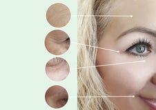 Weibliche Falten vorher, nachdem Collagenverjüngungseffekt-Korrektur procedureremoval shealth angehoben worden ist stockfotos