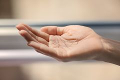 Weibliche Hand mit Nadeln für Akupunktur Stockfotos