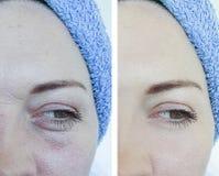 Weibliche Kosmetikerfalten vorher nach Korrektur stockfotos