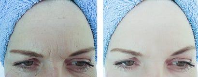 Weibliche Stirnfalten vorher nach Korrektur stockfotos