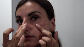 Weibliche Wäschen, Unebenheiten, Abstriche mit Sahne, Gesicht mit Akne stock video