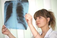Weiblicher Doktor, der einen Röntgenstrahl überprüft Stockfoto