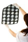Weiblicher Doktor, der Lungen eines Röntgenstrahls betrachtet Stockbild