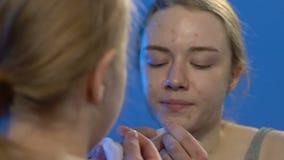 Weiblicher Jugendlicher, der Akne, ungeeignete Hautpflege, Hormonunausgeglichenheit zusammendrückt stock video footage