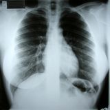 Weiblicher torax Röntgenstrahl Stockbilder