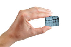 Weiblicher Zahnarzt hält Röntgenstrahl an Stockfotografie