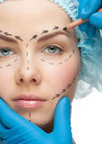 Weibliches Gesicht vor Schönheitsoperationoperation Stockfoto